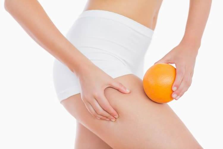 cellulite, cellulitis of sinaasappelhuid