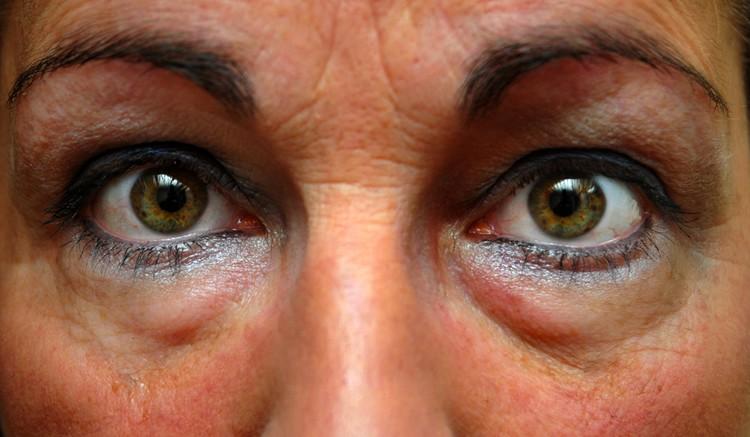 wallen onder je ogen door slappe huid