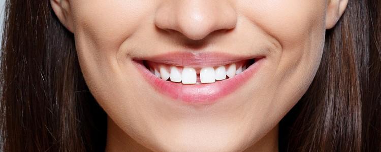 spleet tussen tanden